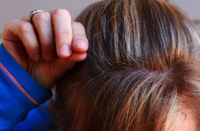 Jika kamu susah memanjangkan rambut, baca beberapa penyebab rambut susah panjang dibawah ini