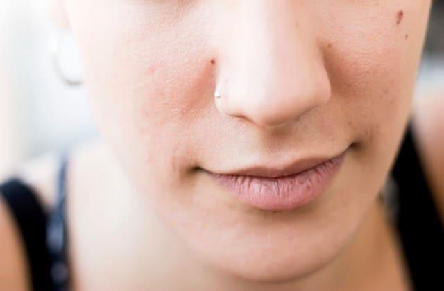 Bertambahnya usia bisa menyebabkan kulit keriput, terutama kulit wajah